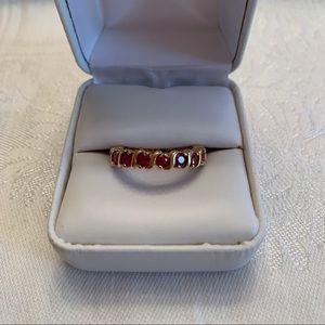 Technibond eternity ring